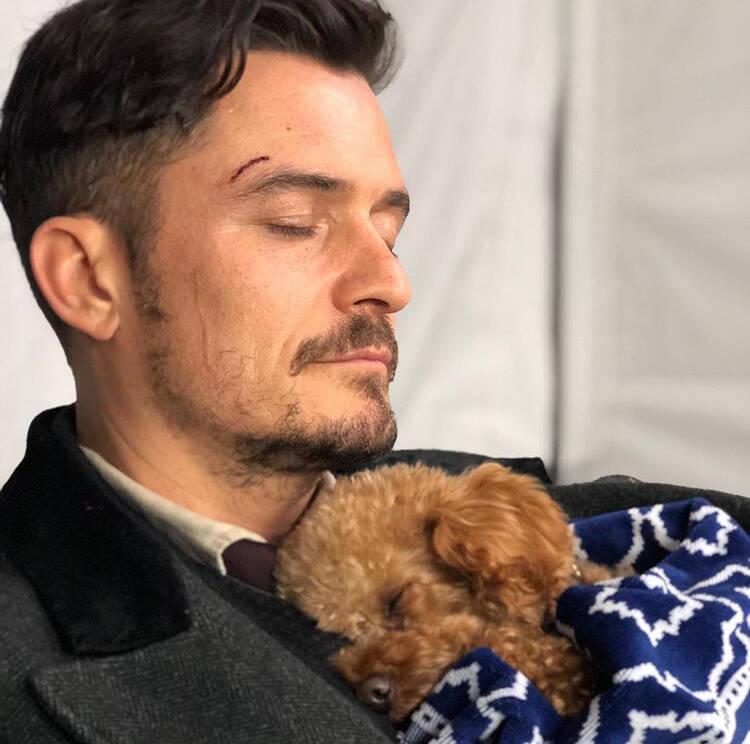 Ator Orlando Bloom sofre com o sumiço do seu cão