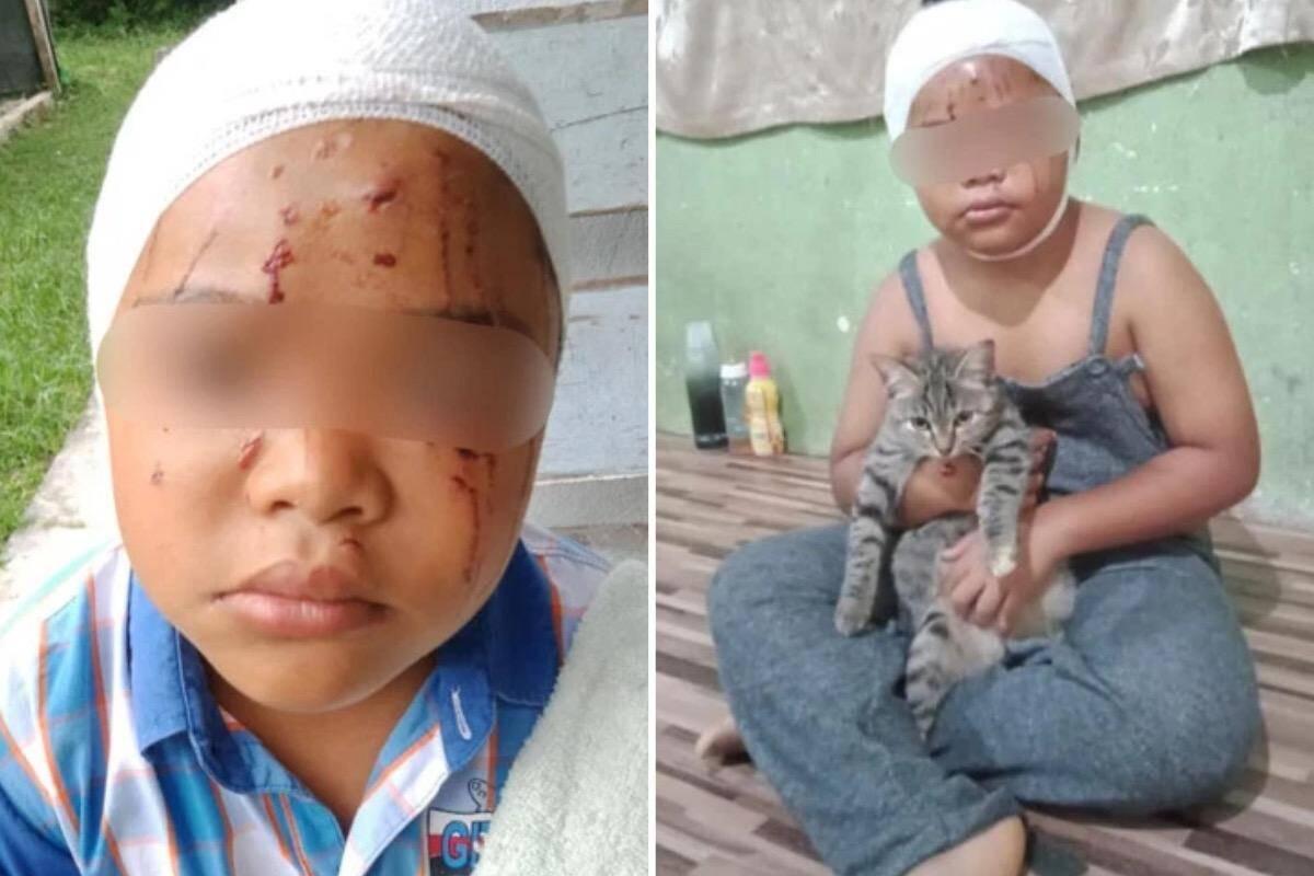 Garoto tem rosto desfigurado por gato, mas continua amando felinos incondicionalmente